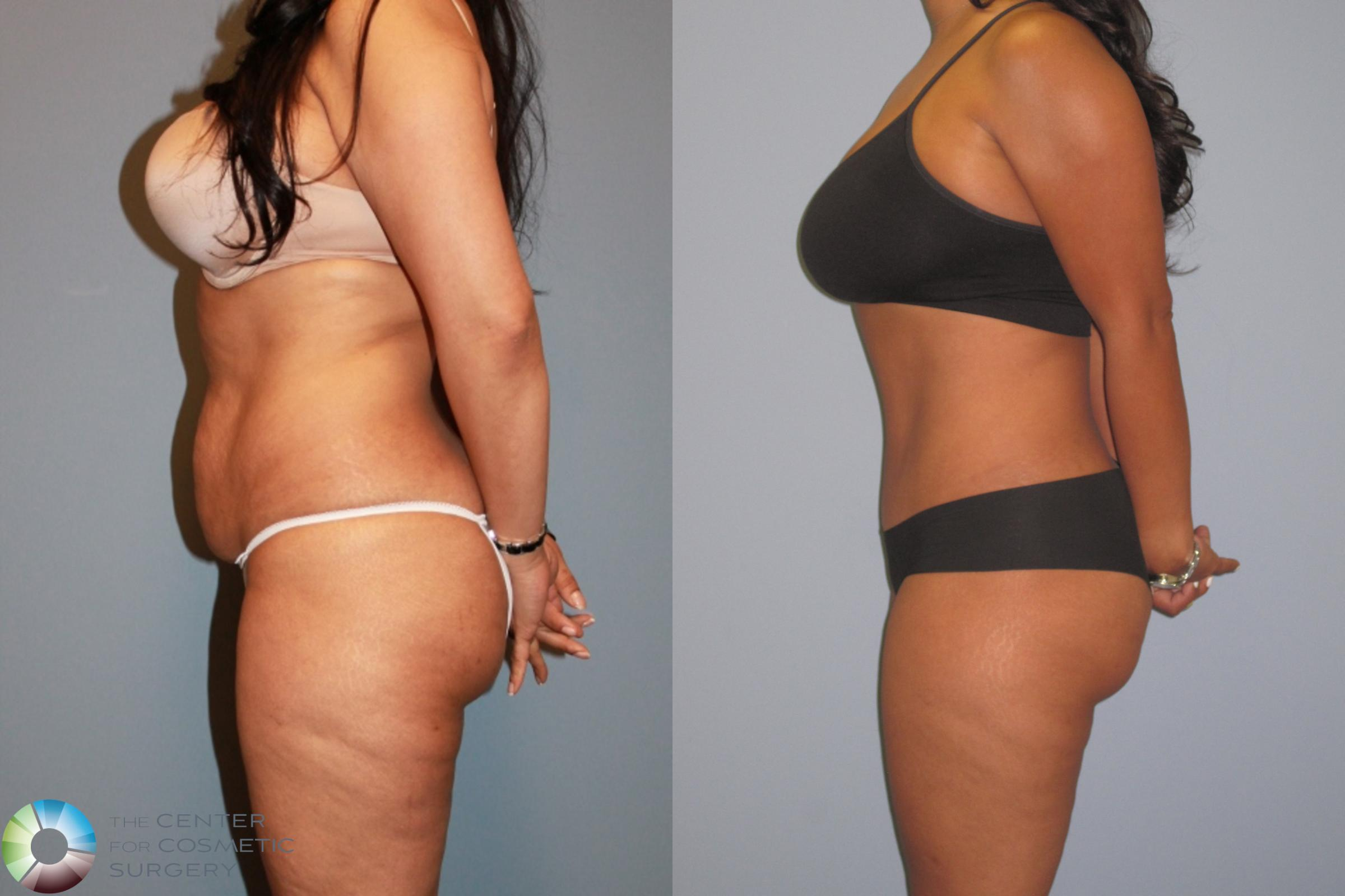 Tummy Tuck Case 487 Before & After View #3 | Golden, CO | The Center for Cosmetic Surgery