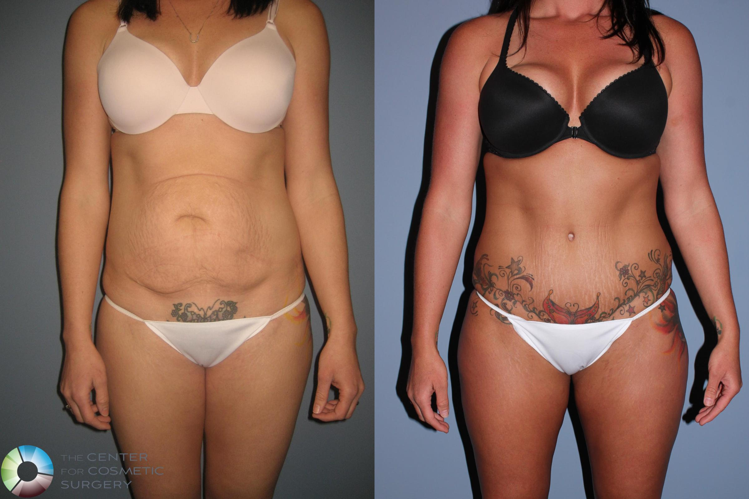 Liposuction Case 490 Before & After View #1 | Golden, CO | The Center for Cosmetic Surgery