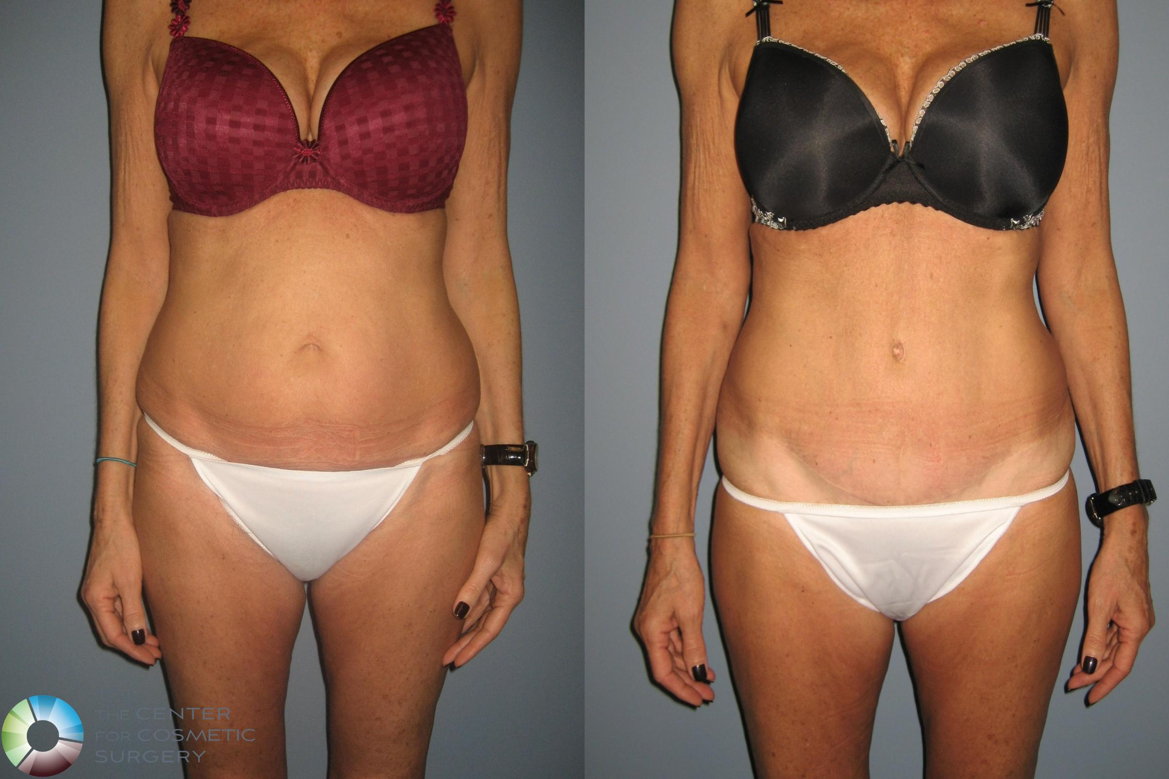 Tummy Tuck Case 491 Before & After View #1 | Golden, CO | The Center for Cosmetic Surgery
