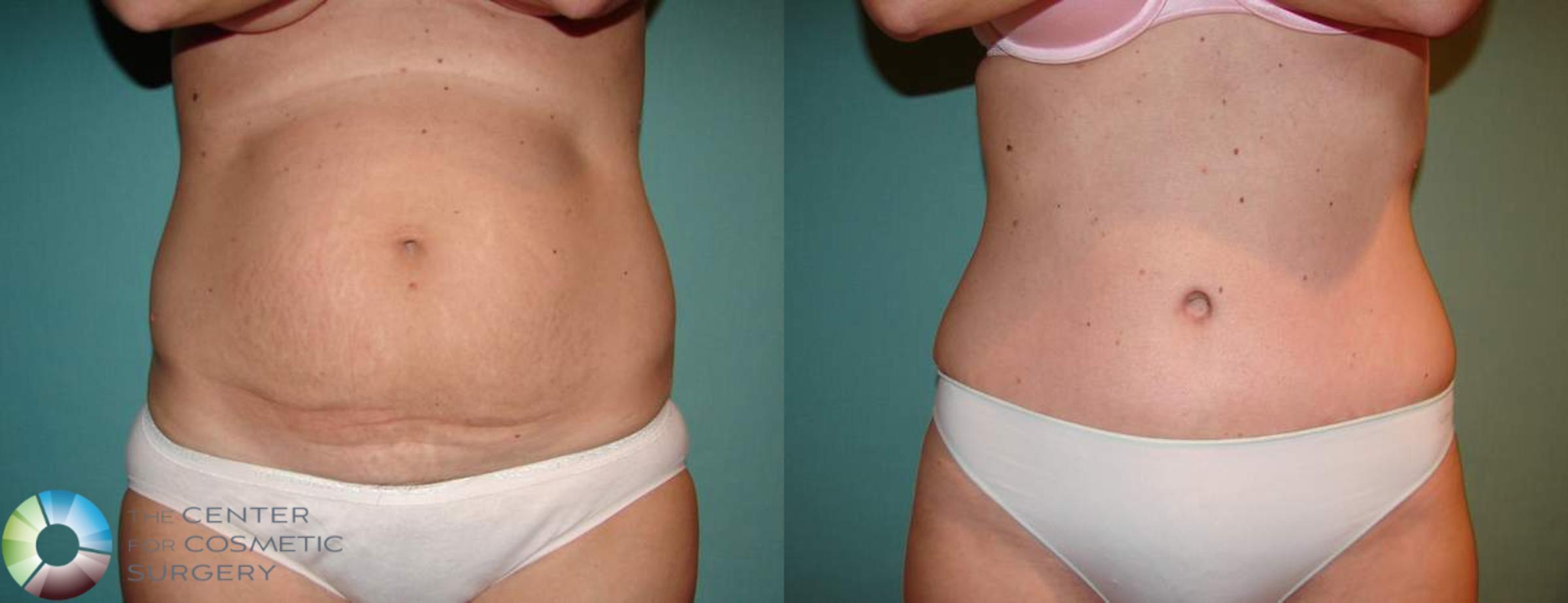 Tummy Tuck Case 551 Before & After View #1 | Golden, CO | The Center for Cosmetic Surgery