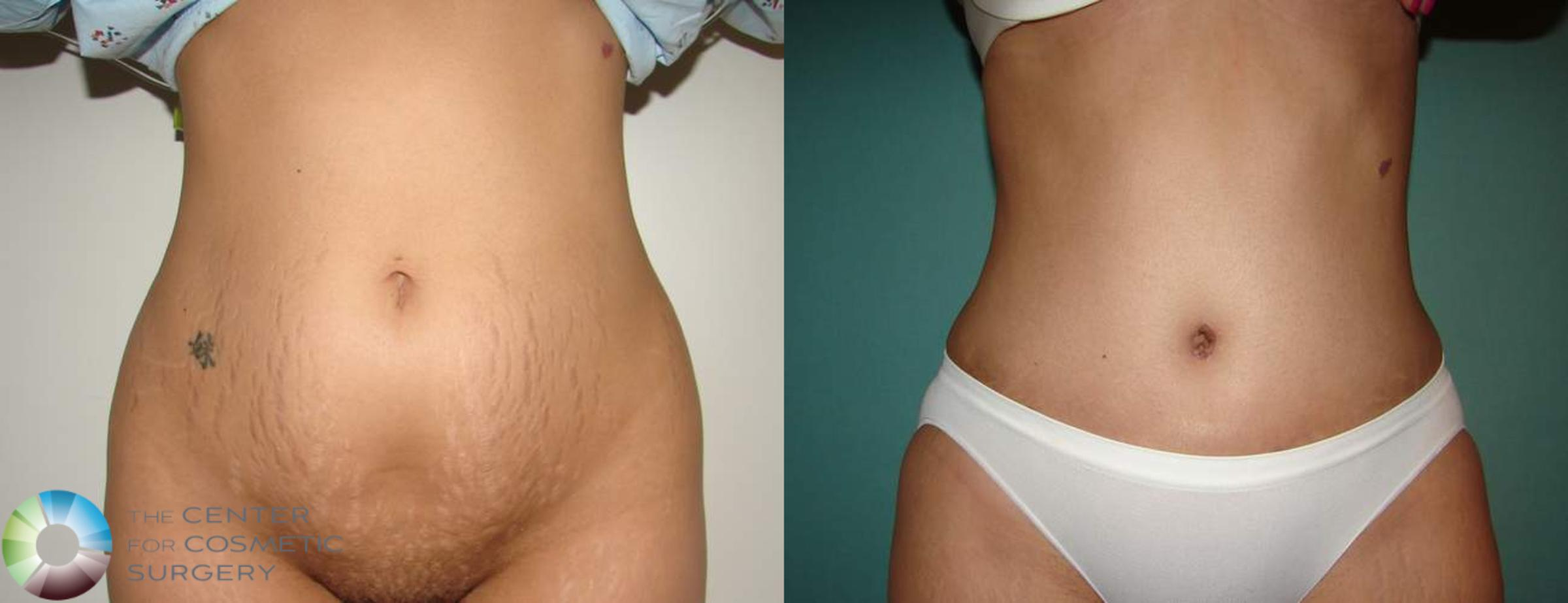 Tummy Tuck Case 552 Before & After View #1 | Golden, CO | The Center for Cosmetic Surgery