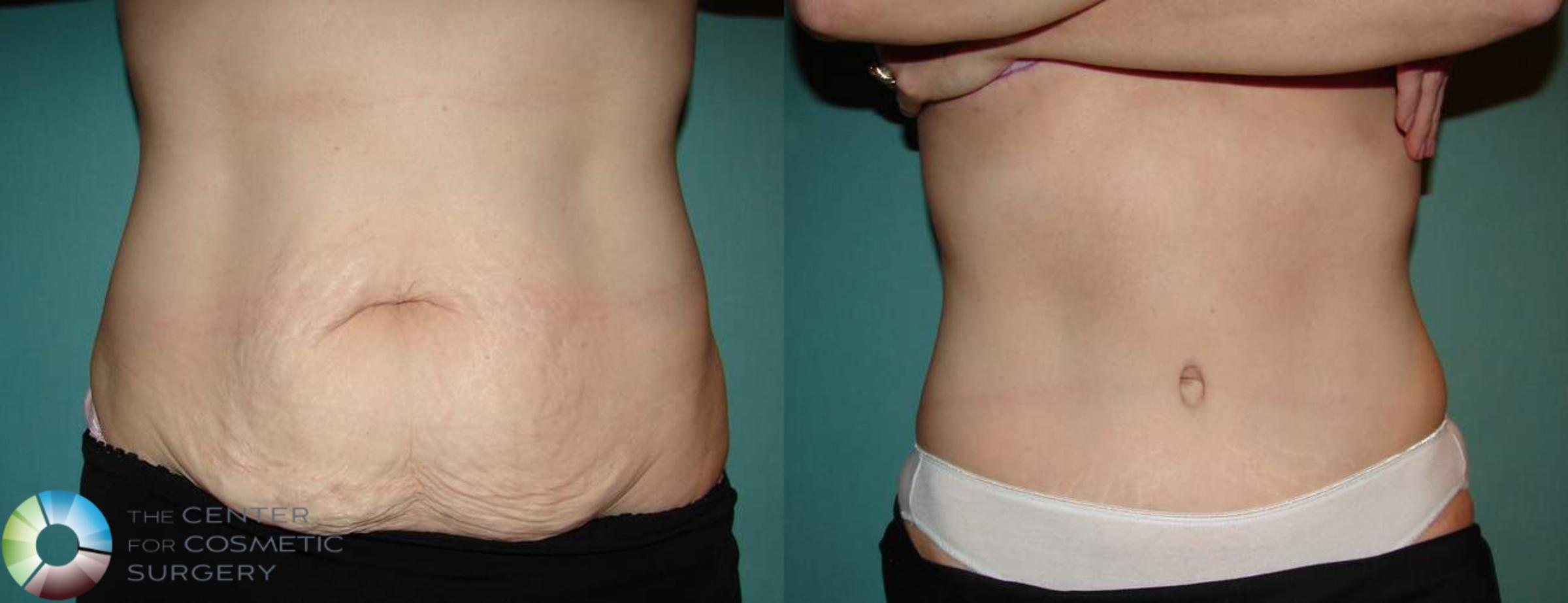 Tummy Tuck Case 553 Before & After View #1 | Golden, CO | The Center for Cosmetic Surgery