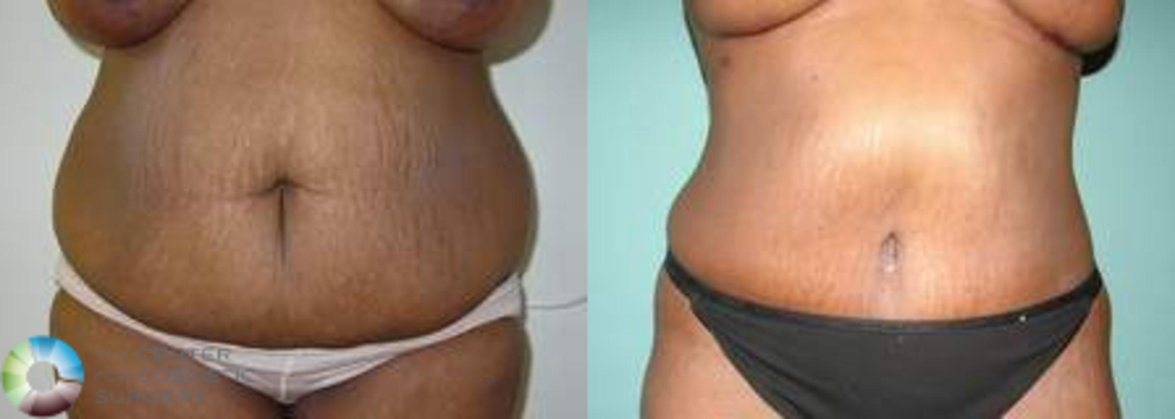 Tummy Tuck Case 557 Before & After View #1 | Golden, CO | The Center for Cosmetic Surgery