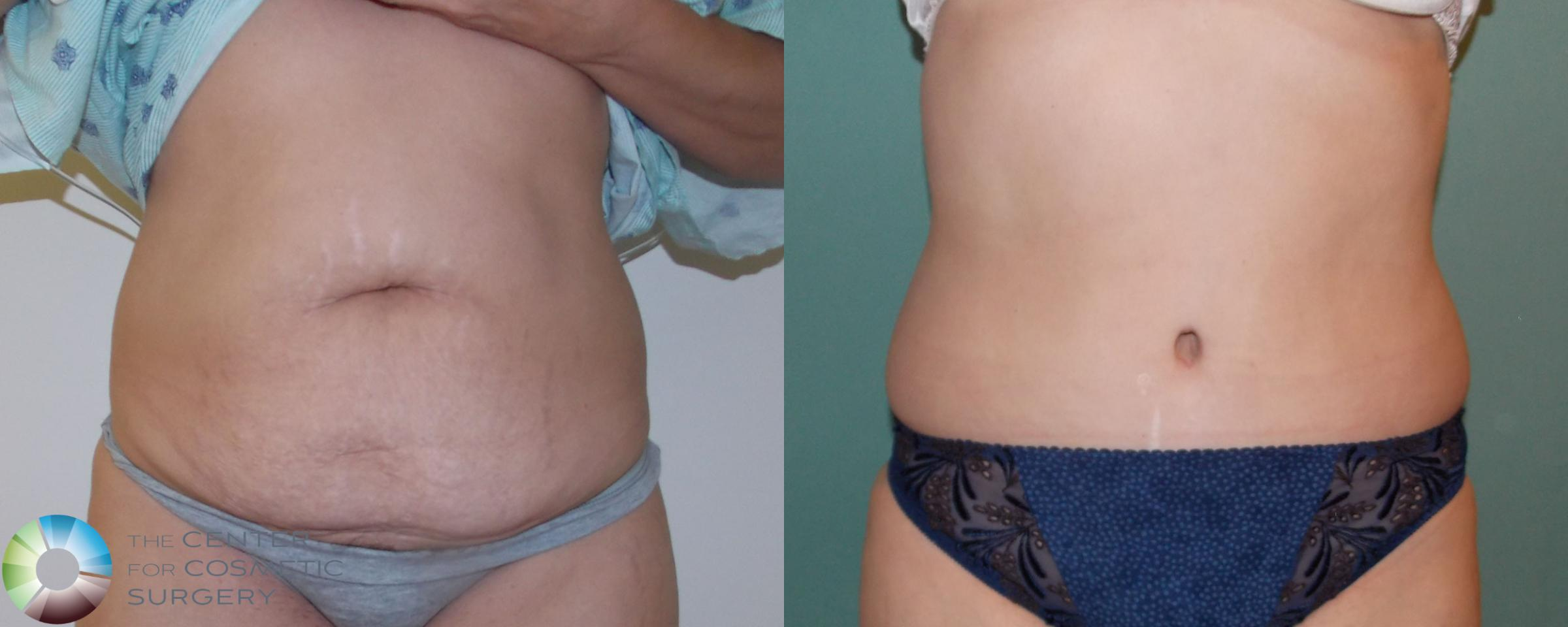 Tummy Tuck Case 685 Before & After View #1 | Golden, CO | The Center for Cosmetic Surgery