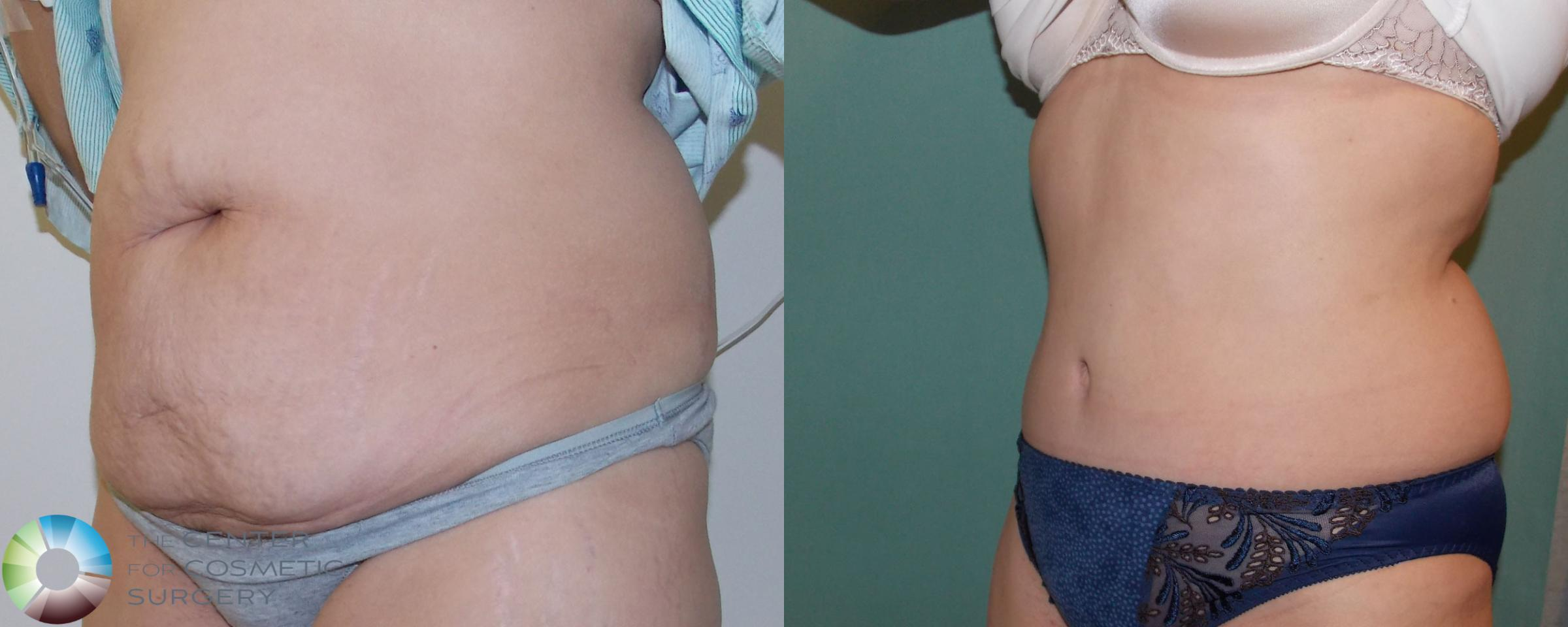 Tummy Tuck Case 685 Before & After View #2 | Golden, CO | The Center for Cosmetic Surgery