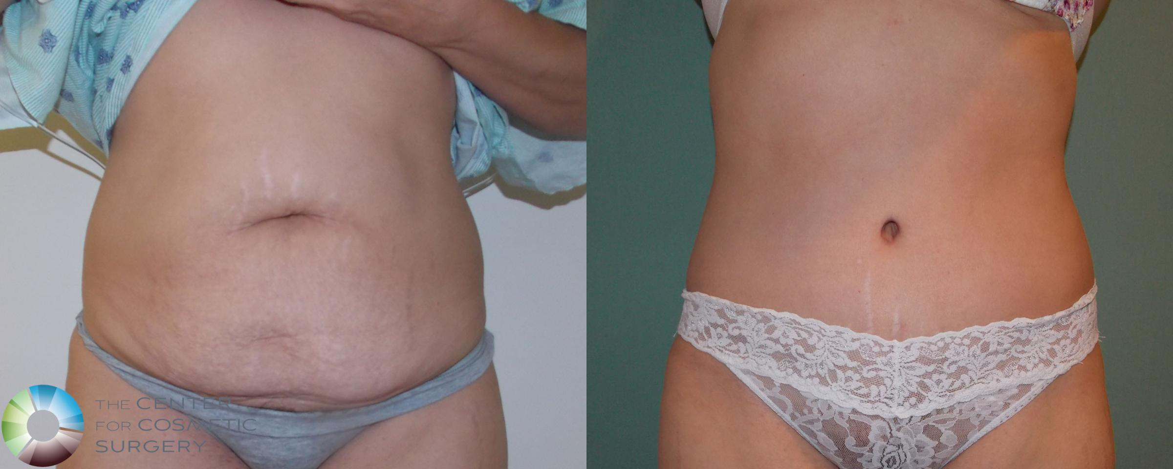 Tummy Tuck Case 685 Before & After View #4 | Golden, CO | The Center for Cosmetic Surgery