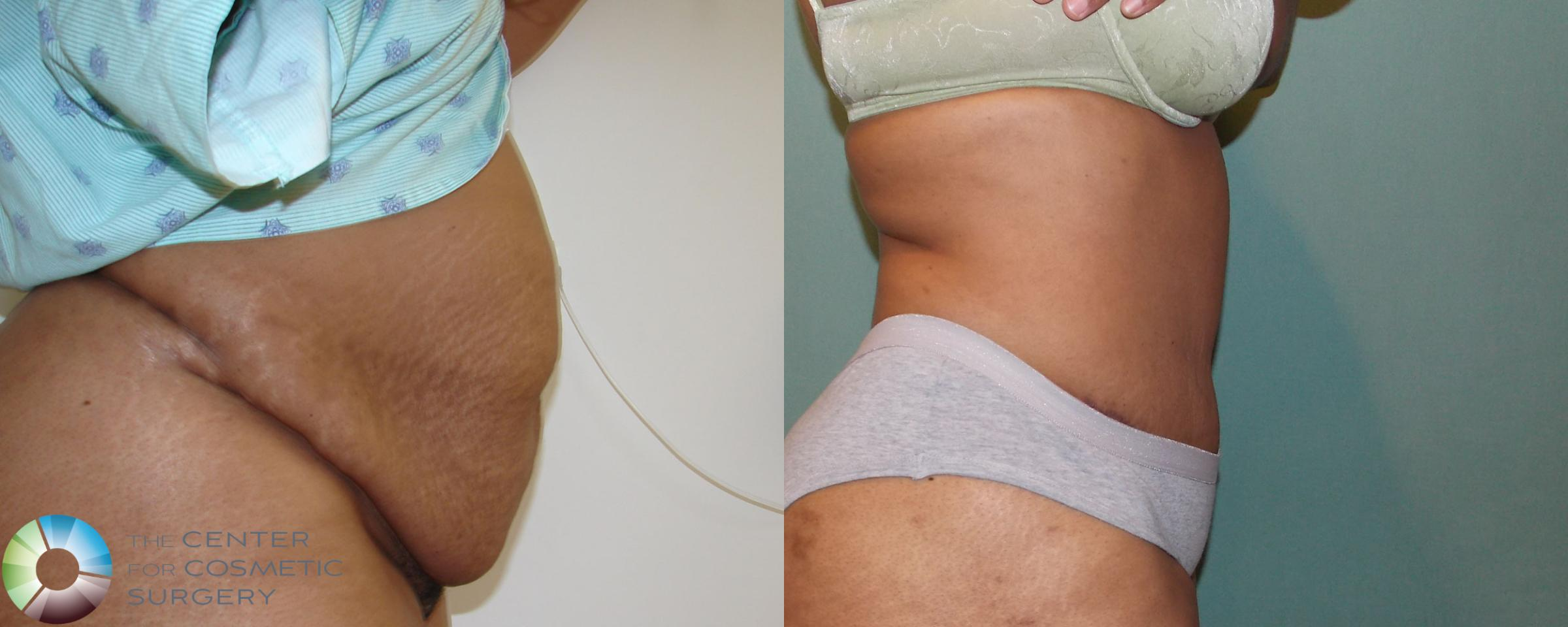 Tummy Tuck Case 686 Before & After View #2 | Golden, CO | The Center for Cosmetic Surgery