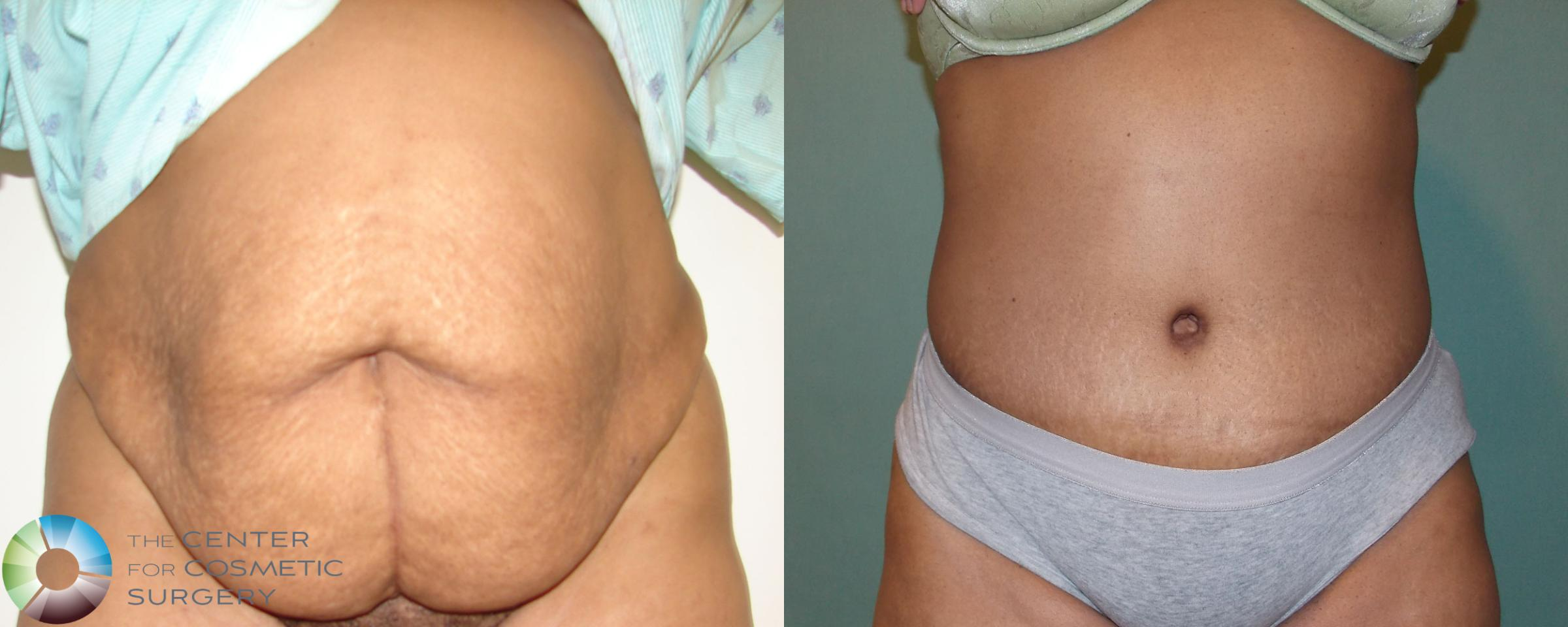 Tummy Tuck Case 686 Before & After View #3 | Golden, CO | The Center for Cosmetic Surgery