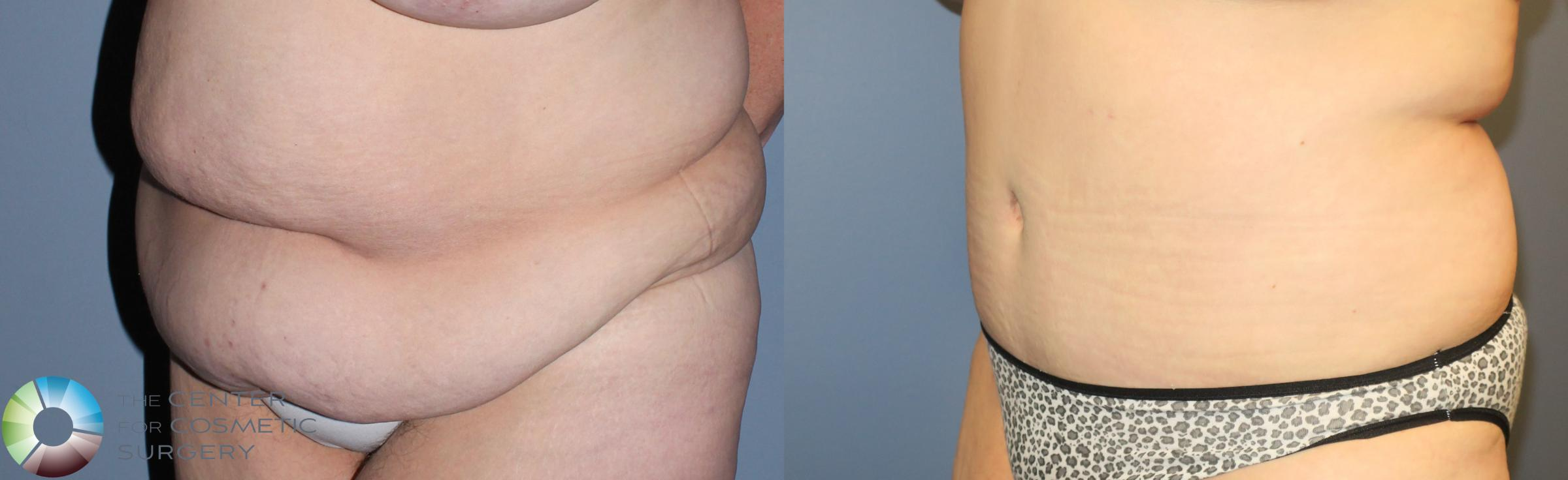 Tummy Tuck Case 780 Before & After View #1 | Golden, CO | The Center for Cosmetic Surgery