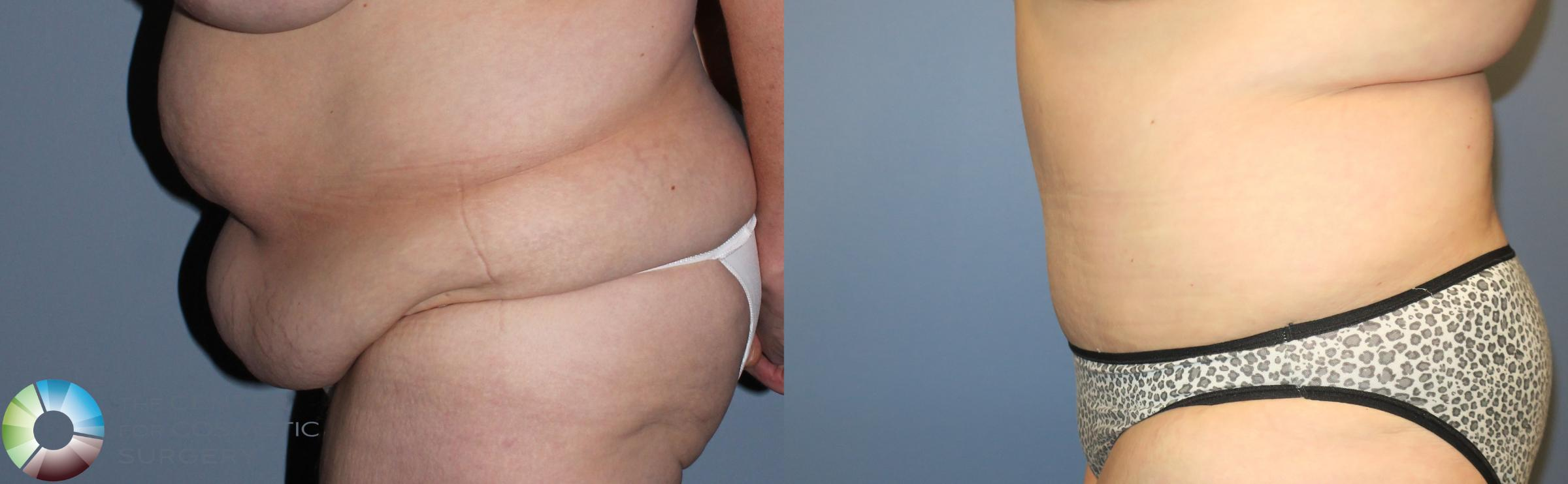 Tummy Tuck Case 780 Before & After View #3 | Golden, CO | The Center for Cosmetic Surgery