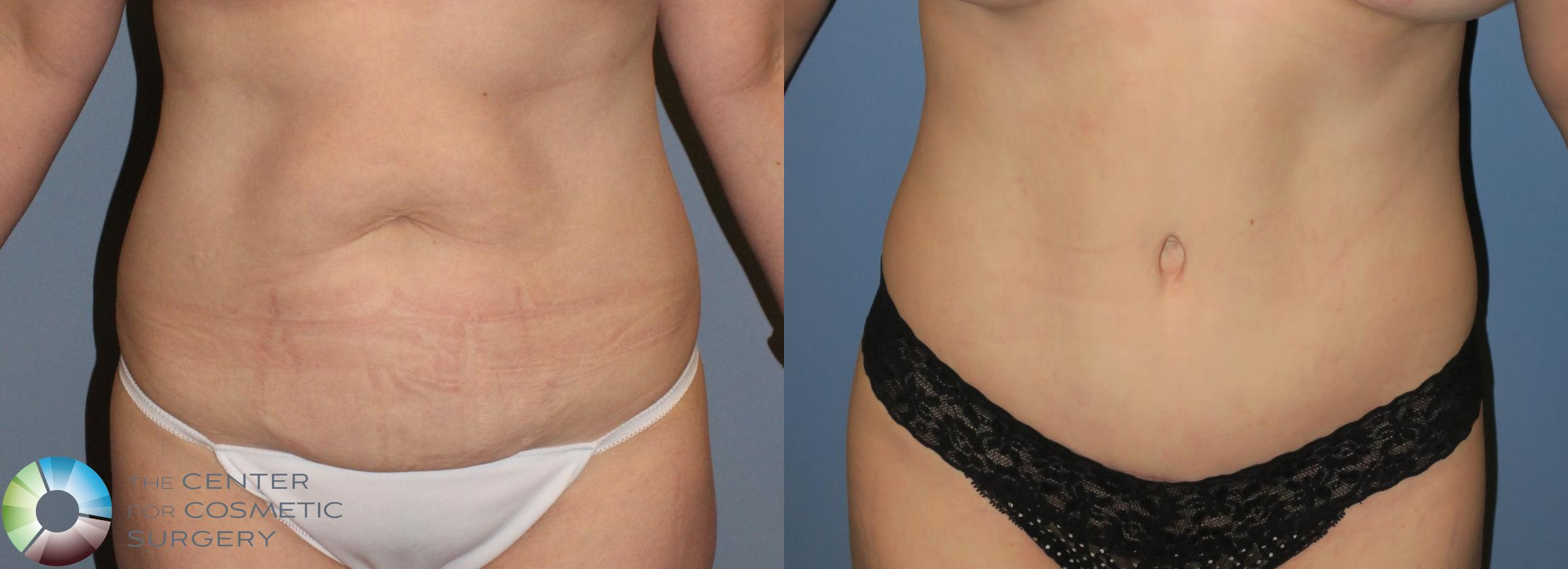 Tummy Tuck Case 792 Before & After View #1 | Golden, CO | The Center for Cosmetic Surgery