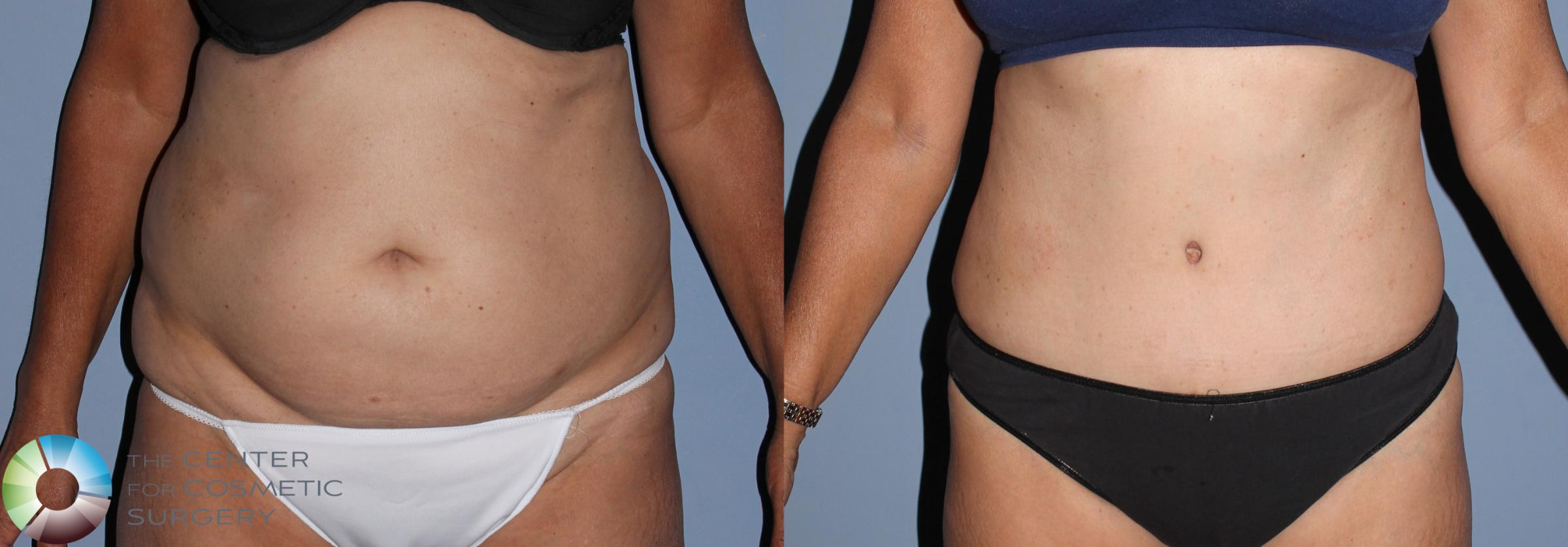 Tummy Tuck Case 795 Before & After View #1 | Golden, CO | The Center for Cosmetic Surgery