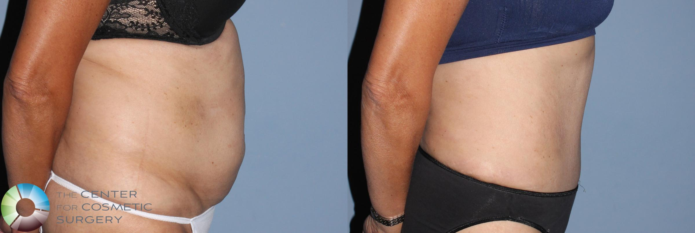 Tummy Tuck Case 795 Before & After View #2 | Golden, CO | The Center for Cosmetic Surgery
