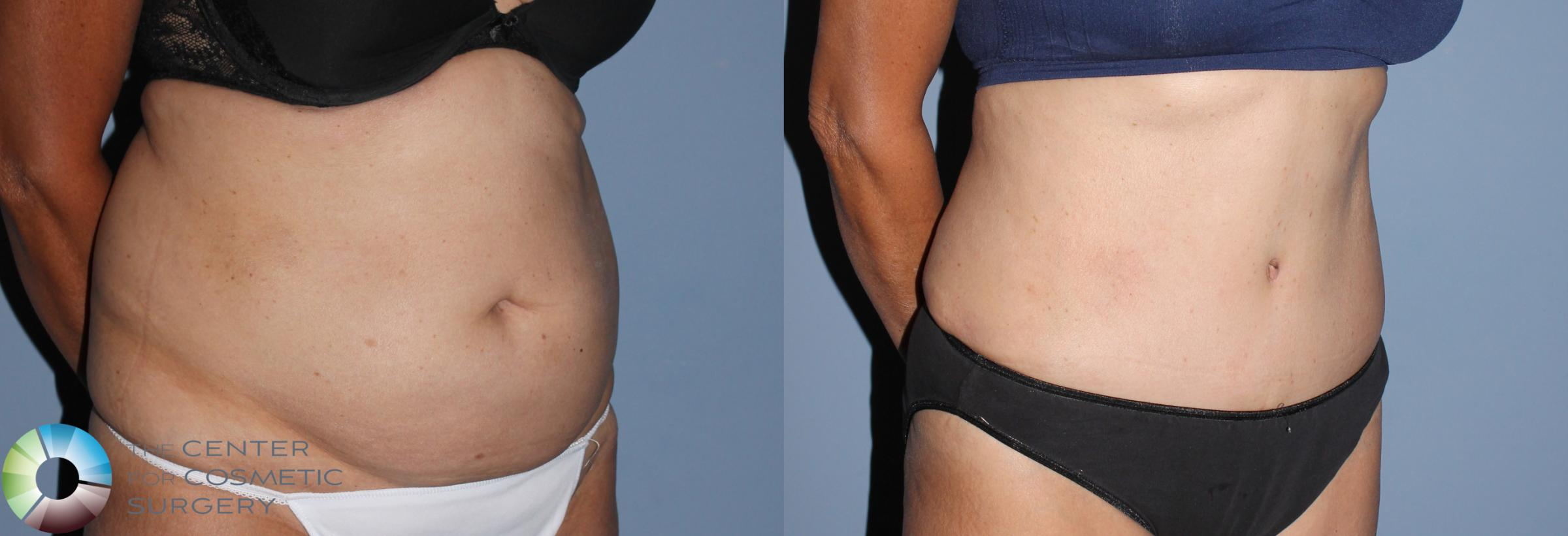 Tummy Tuck Case 795 Before & After View #3 | Golden, CO | The Center for Cosmetic Surgery