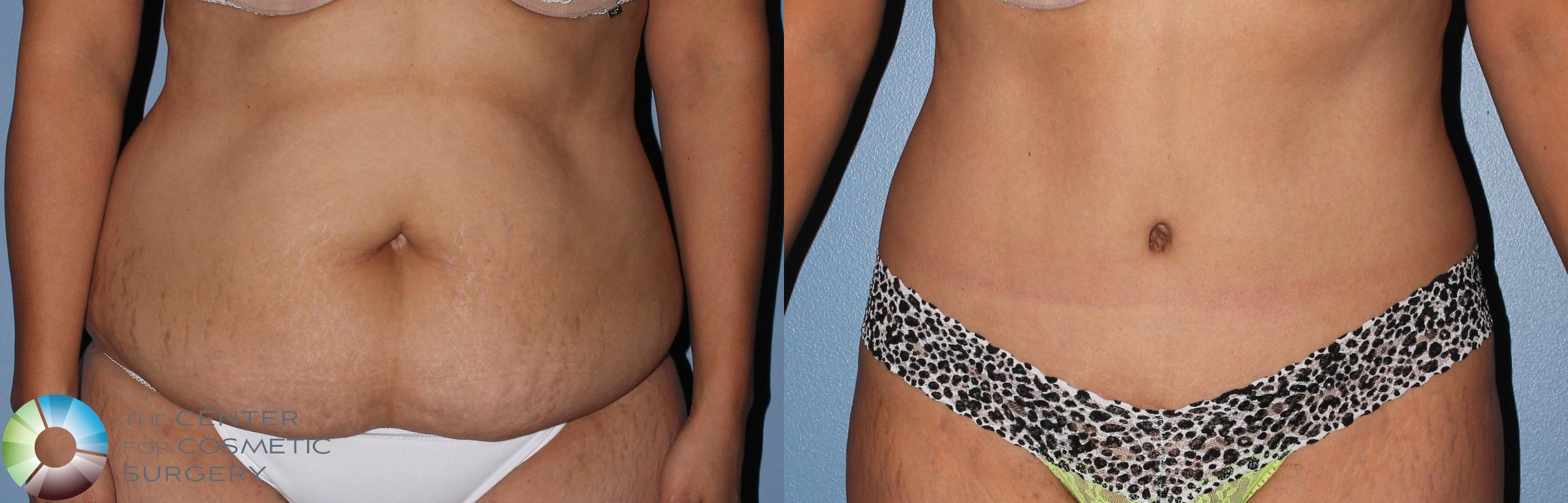 Tummy Tuck Case 798 Before & After View #3 | Golden, CO | The Center for Cosmetic Surgery