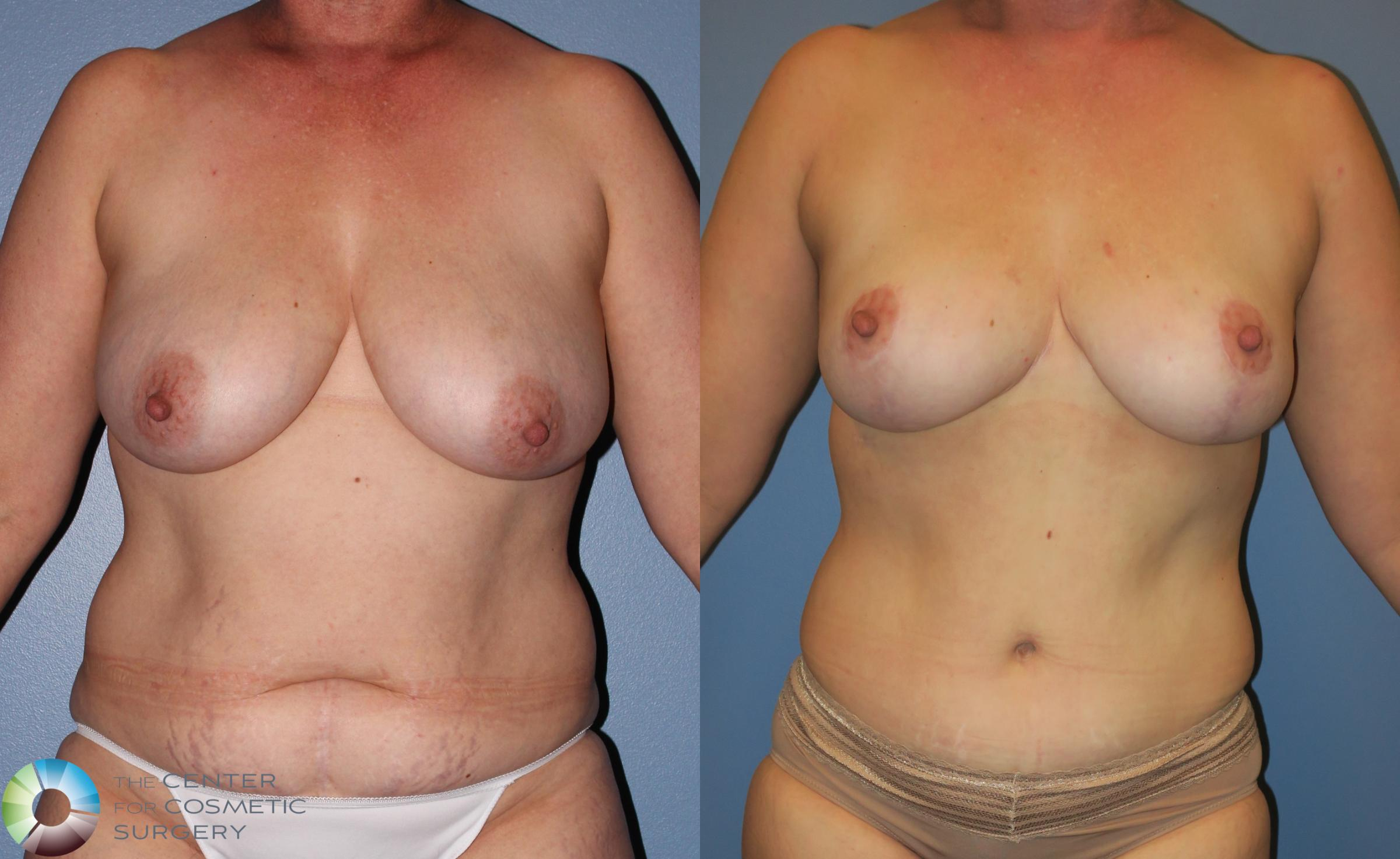 Tummy Tuck Case 851 Before & After View #1 | Golden, CO | The Center for Cosmetic Surgery