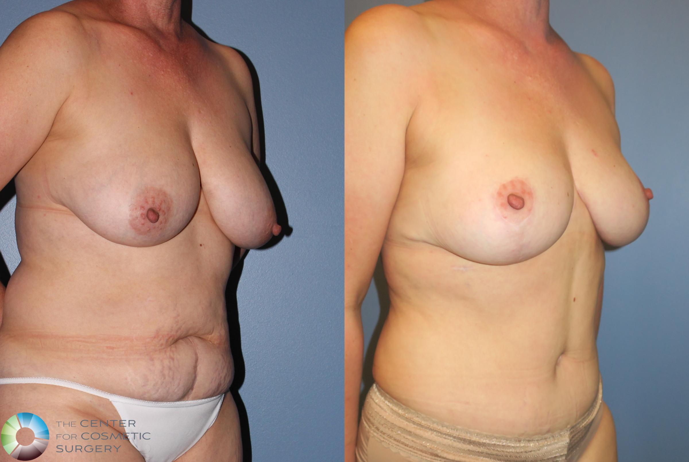 Tummy Tuck Case 851 Before & After View #2 | Golden, CO | The Center for Cosmetic Surgery