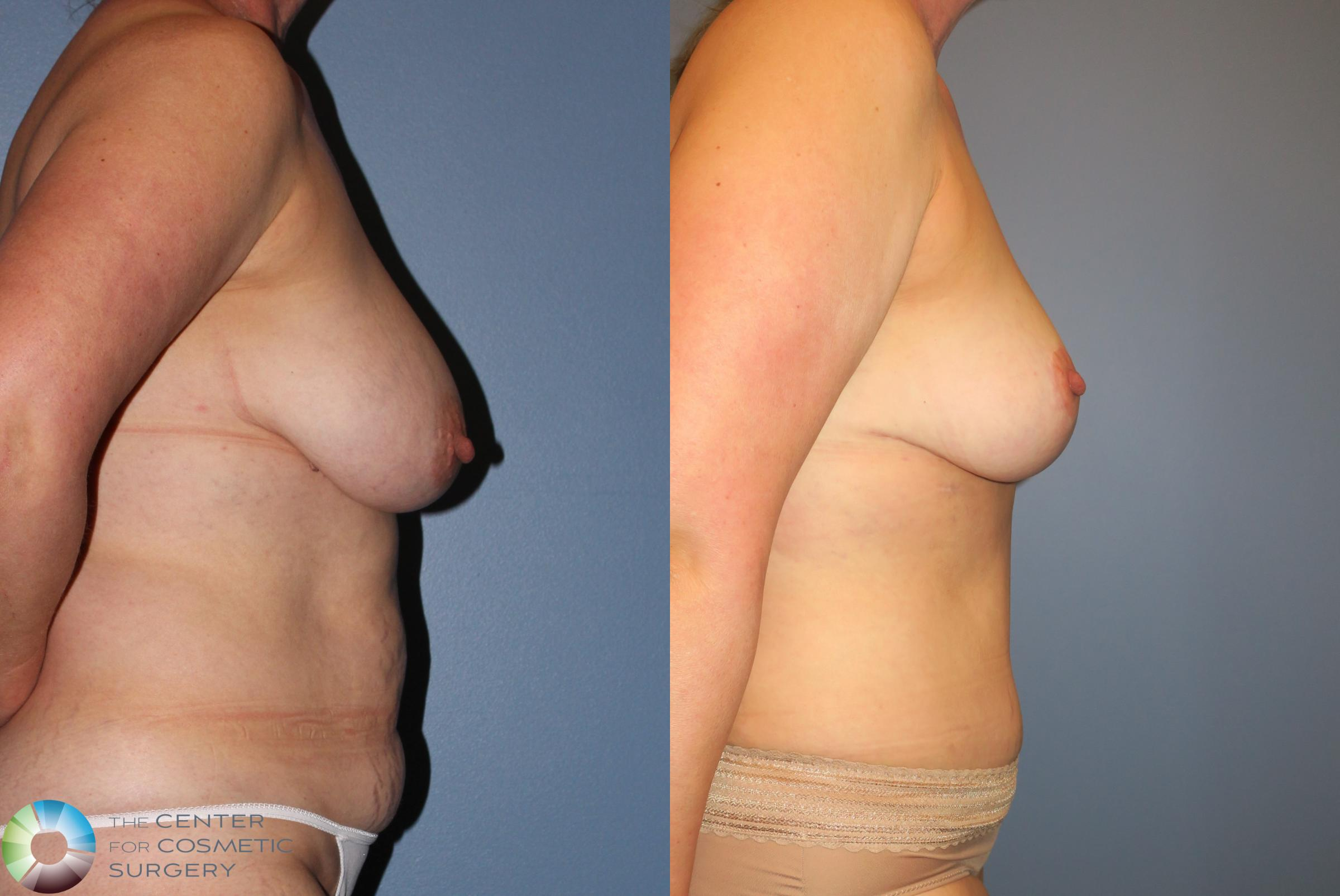 Tummy Tuck Case 851 Before & After View #3 | Golden, CO | The Center for Cosmetic Surgery