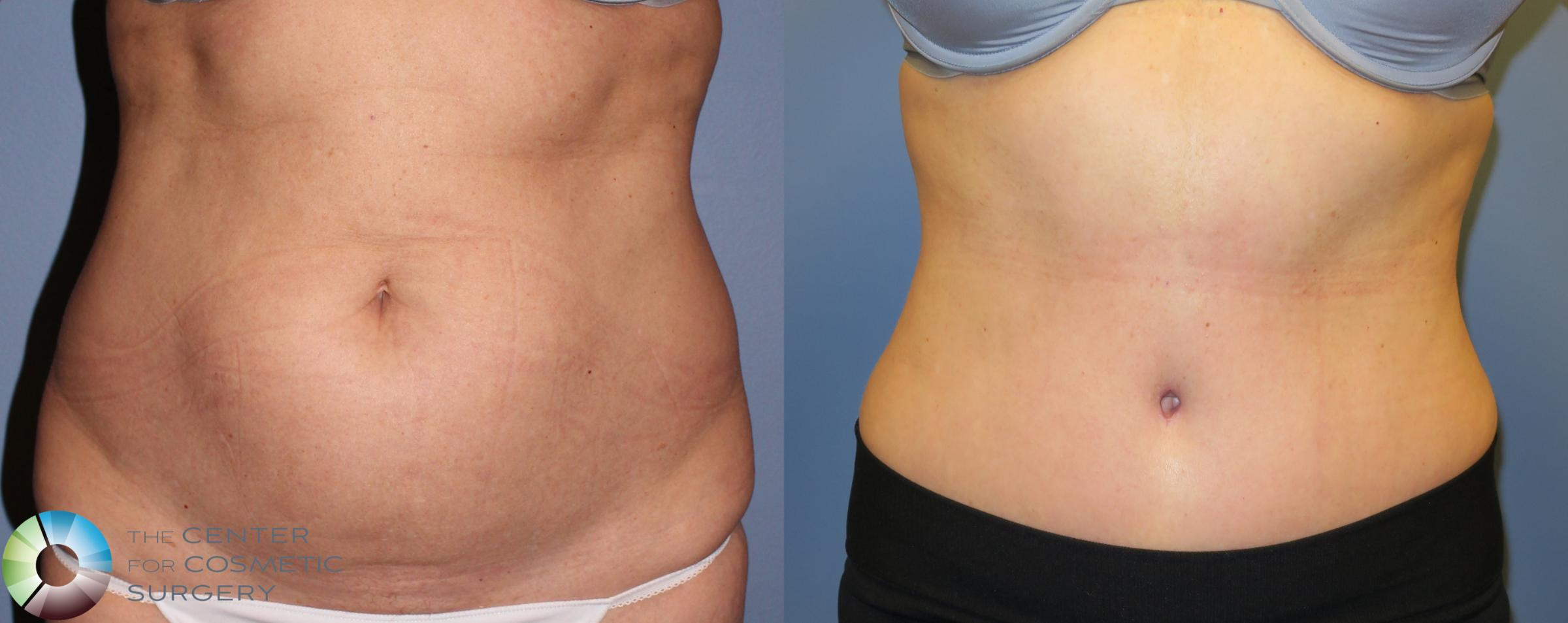 Tummy Tuck Case 853 Before & After View #1 | Golden, CO | The Center for Cosmetic Surgery