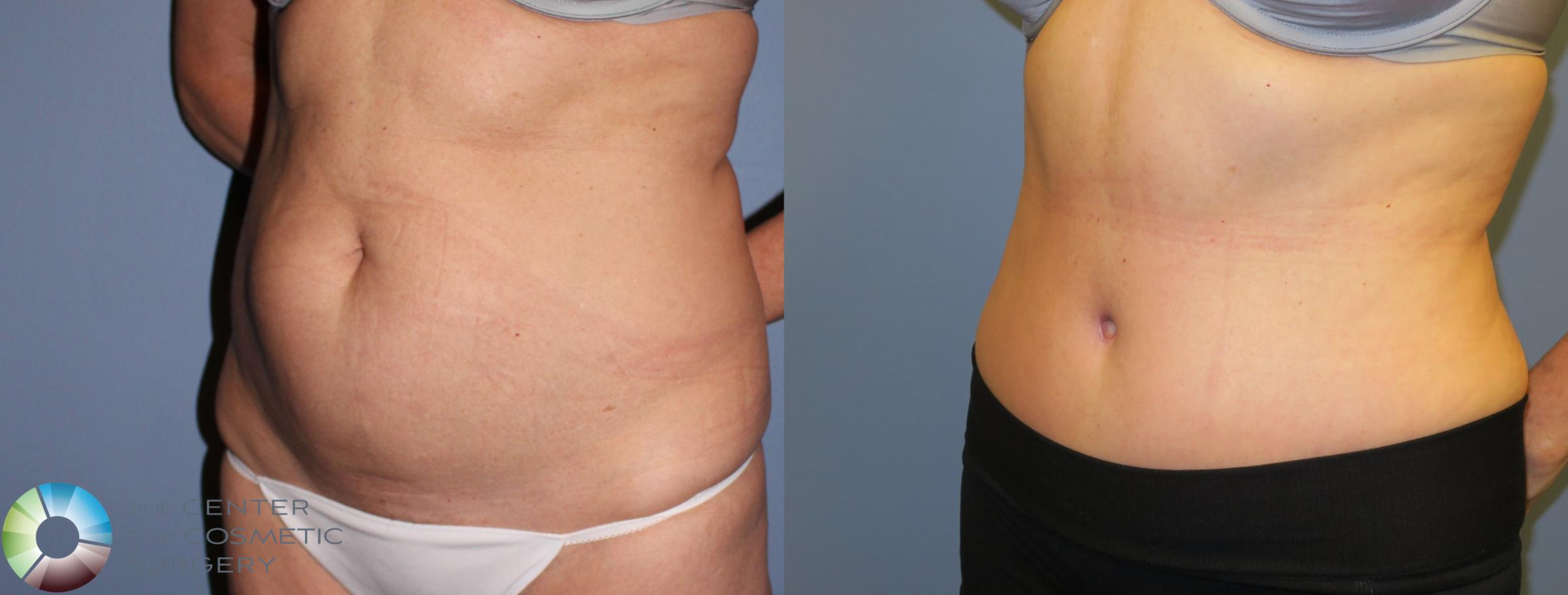 Tummy Tuck Case 853 Before & After View #2 | Golden, CO | The Center for Cosmetic Surgery