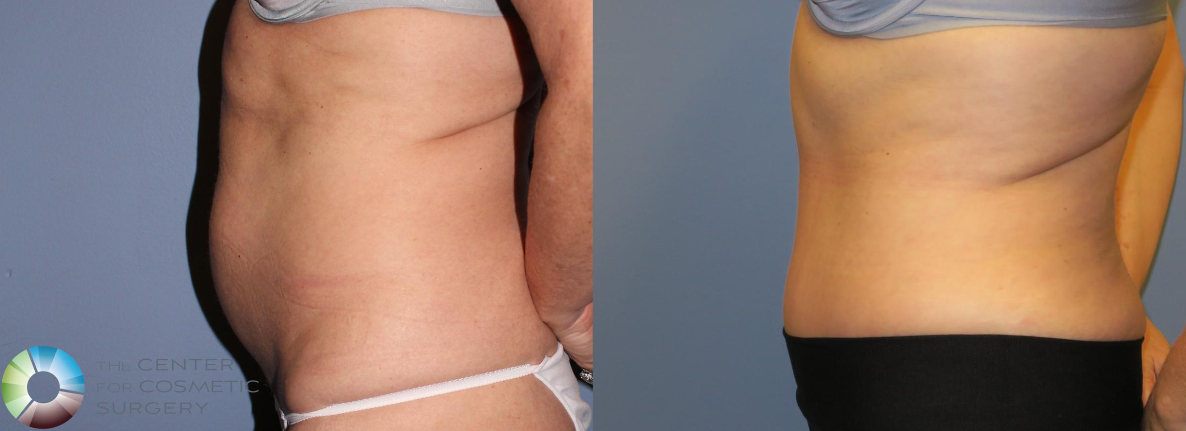 Tummy Tuck Case 853 Before & After View #3 | Golden, CO | The Center for Cosmetic Surgery