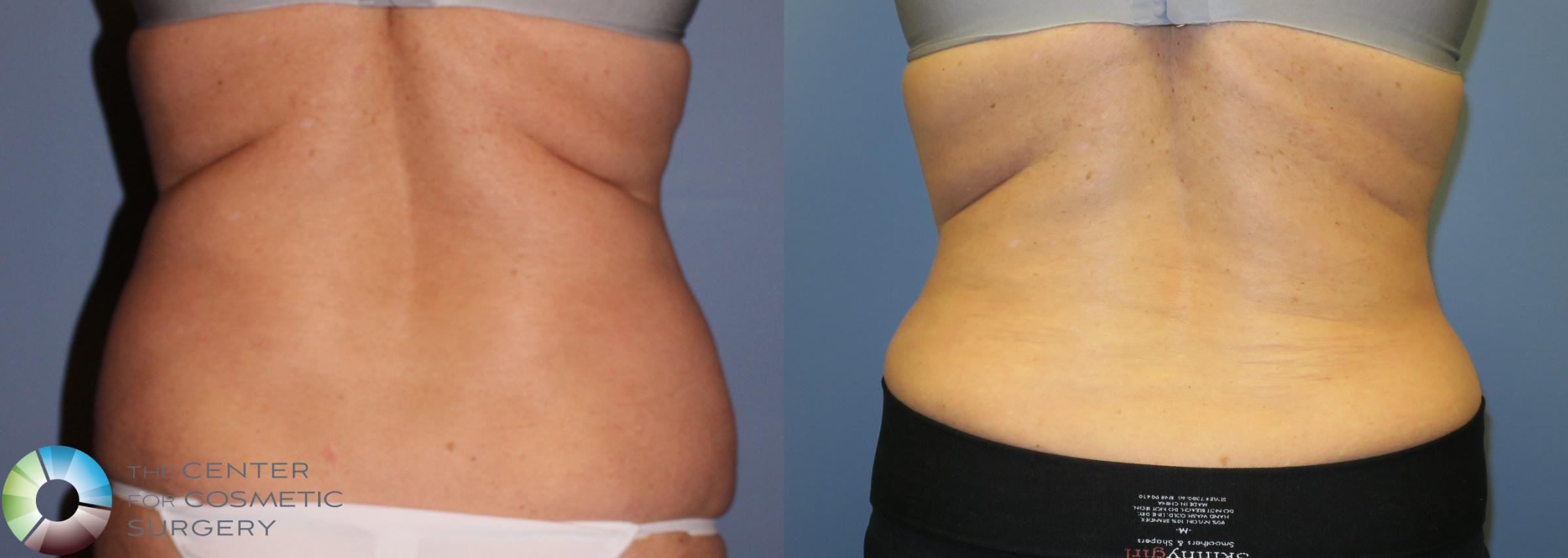 Tummy Tuck Case 853 Before & After View #4 | Golden, CO | The Center for Cosmetic Surgery