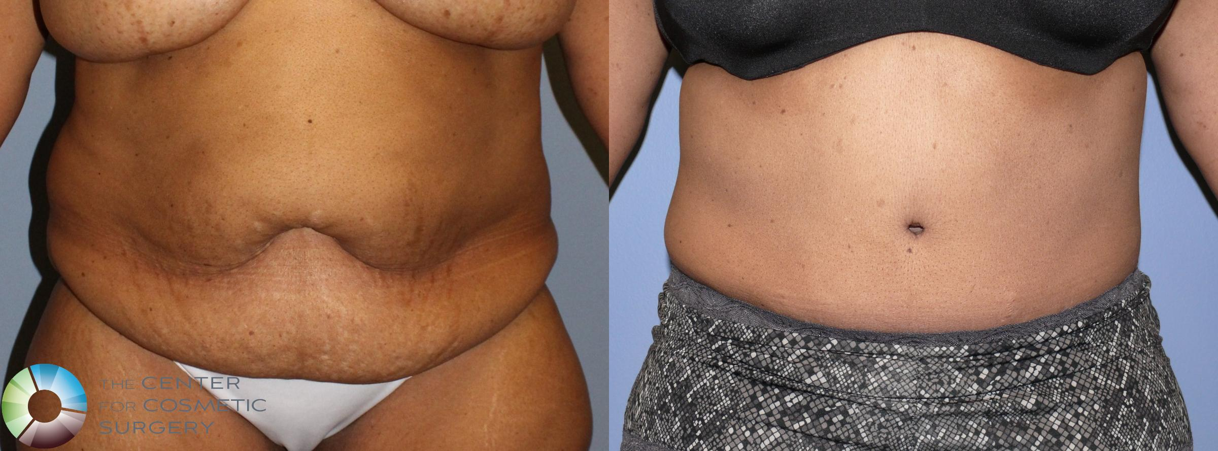 Tummy Tuck Case 923 Before & After View #1 | Golden, CO | The Center for Cosmetic Surgery