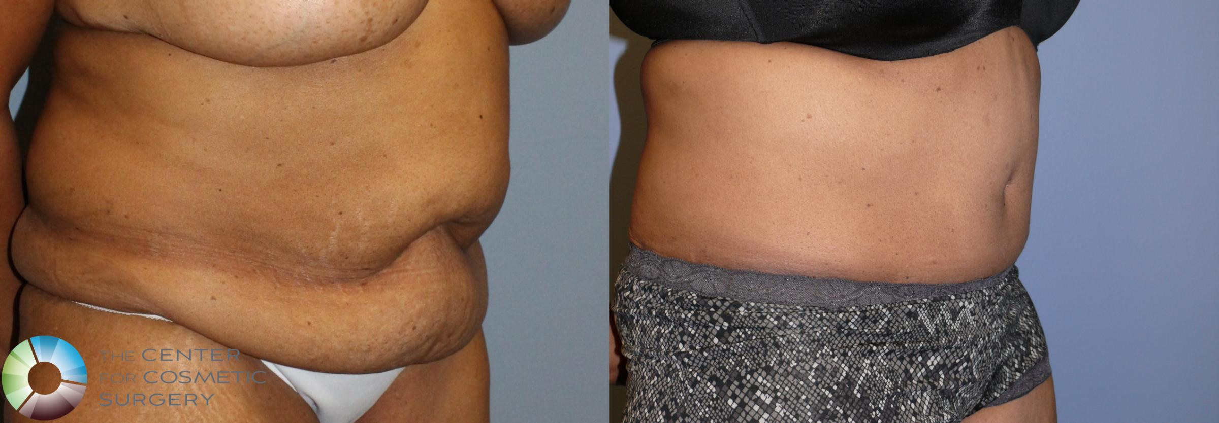 Tummy Tuck Case 923 Before & After View #2 | Golden, CO | The Center for Cosmetic Surgery