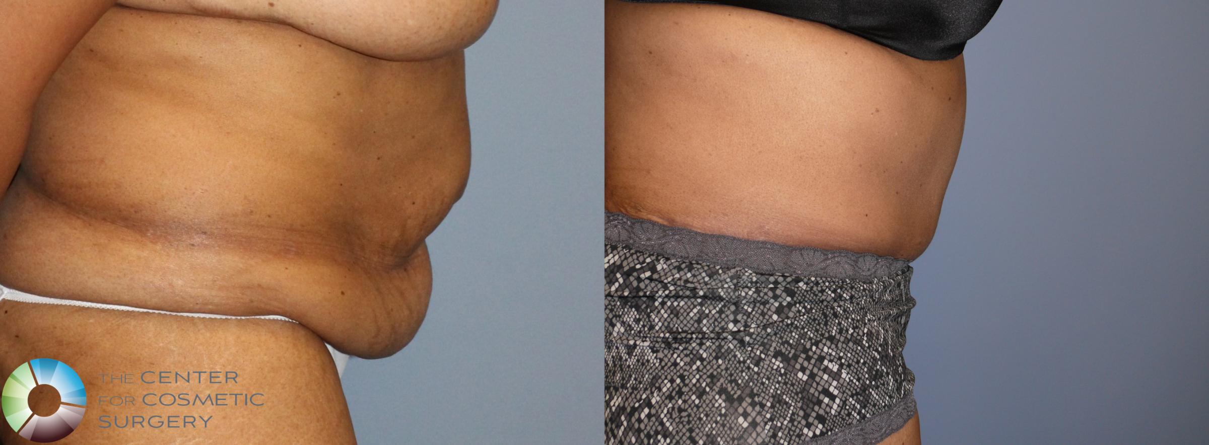 Tummy Tuck Case 923 Before & After View #3 | Golden, CO | The Center for Cosmetic Surgery