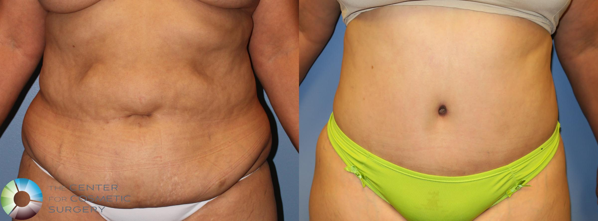 Power-assisted Liposuction Case 945 Before & After View #1 | Golden, CO | The Center for Cosmetic Surgery