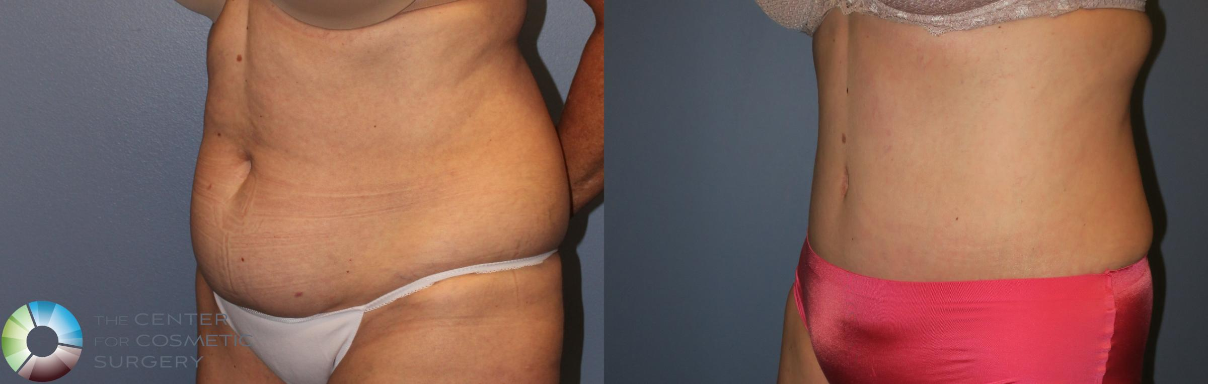 Tummy Tuck Case 954 Before & After View #1 | Golden, CO | The Center for Cosmetic Surgery