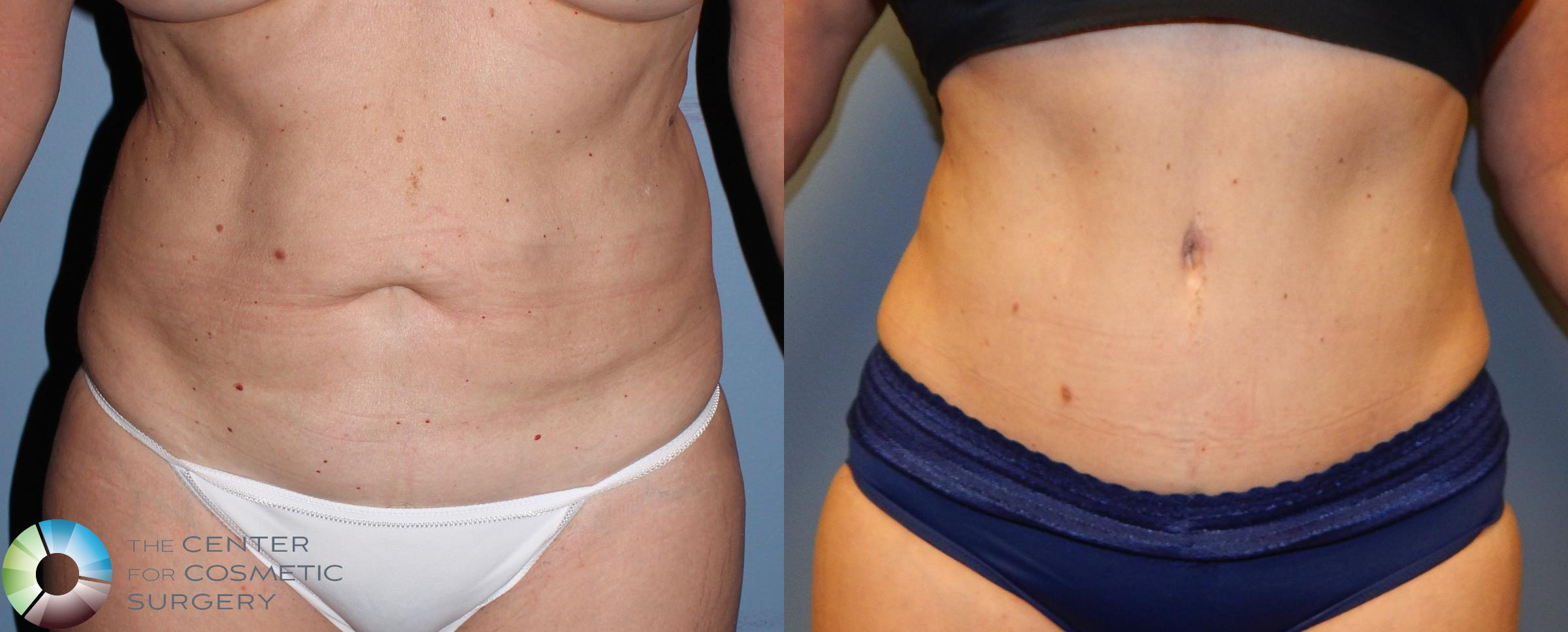 Tummy Tuck Case 957 Before & After View #1 | Golden, CO | The Center for Cosmetic Surgery