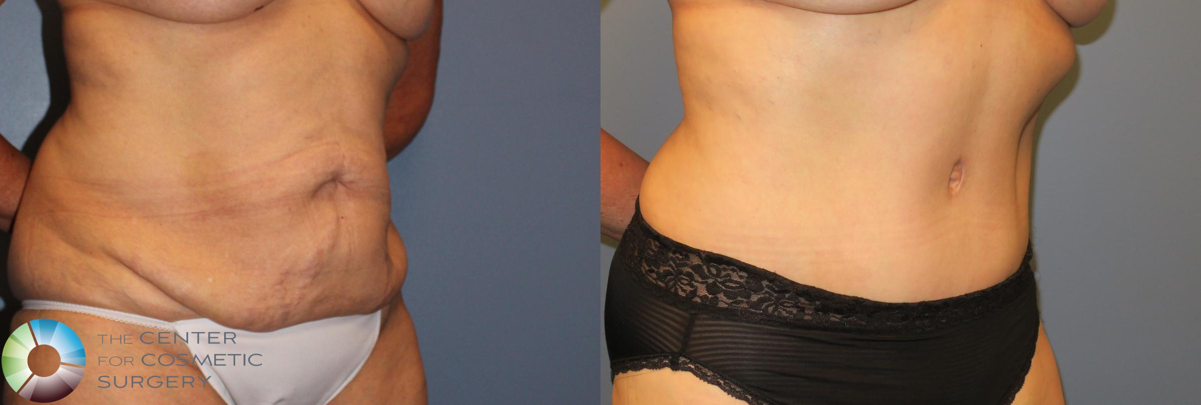 Tummy Tuck Case 962 Before & After View #2 | Golden, CO | The Center for Cosmetic Surgery