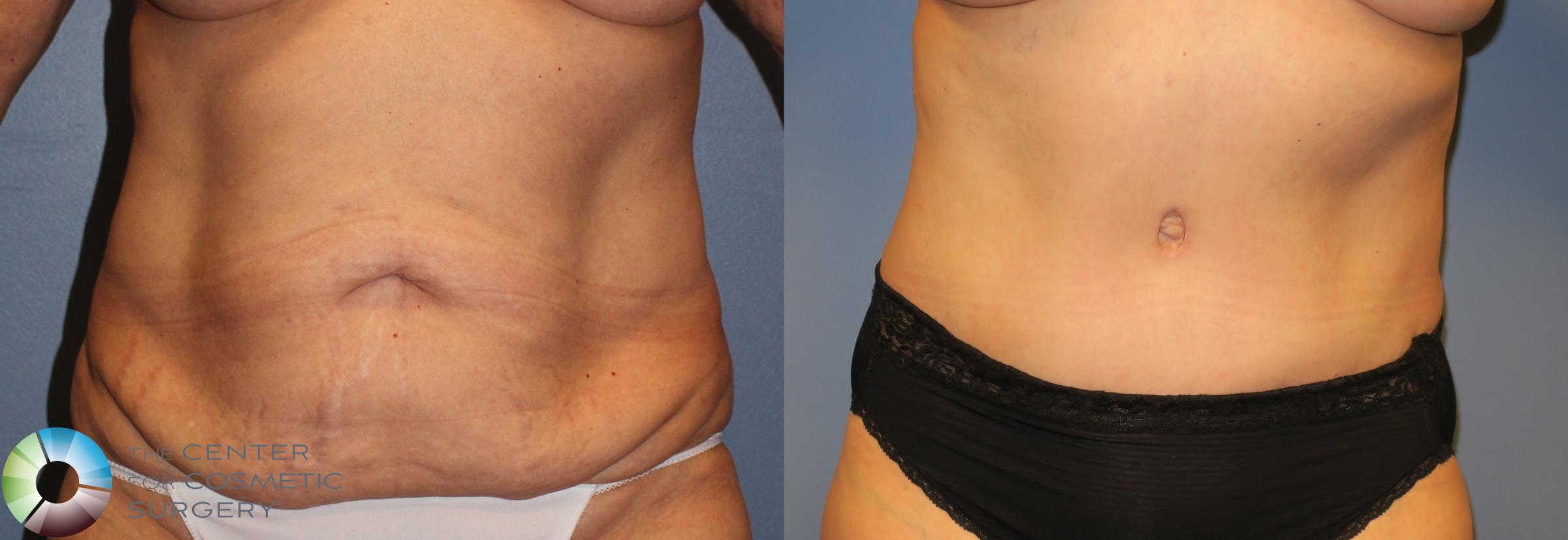 Tummy Tuck Case 962 Before & After View #3 | Golden, CO | The Center for Cosmetic Surgery